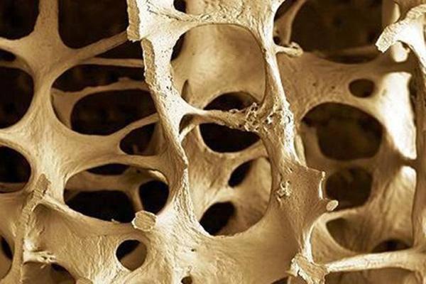 Osteoporosis FLICKR - German Tenorio.jpg